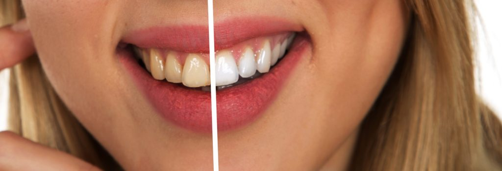 The Dos and Don'ts of Teeth Whitening