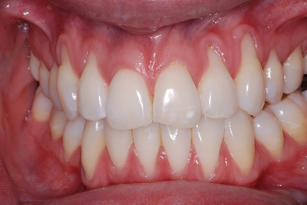 What Is Gum Contouring And Reshaping Westermeier Martin