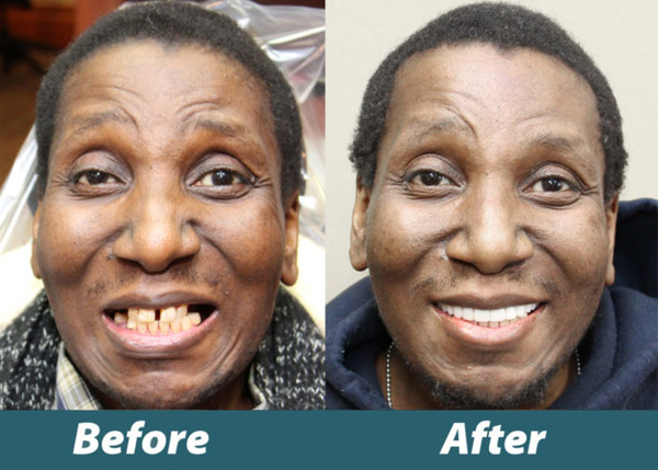 Before and after photos of Jacob a Veterans Day Makeover winner