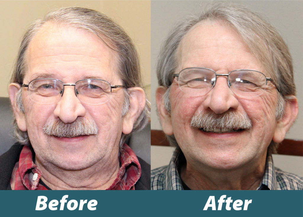 Before and after image of Veteran David Weltz's new smile