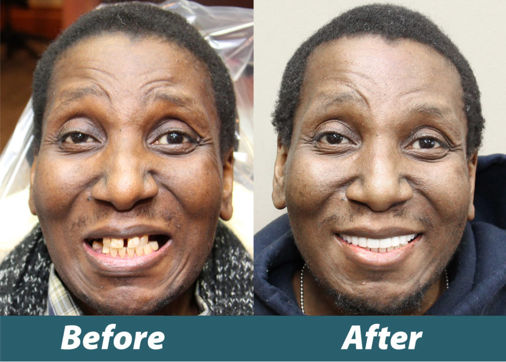 Before and after image of Veteran Jacob Brunson's new smile