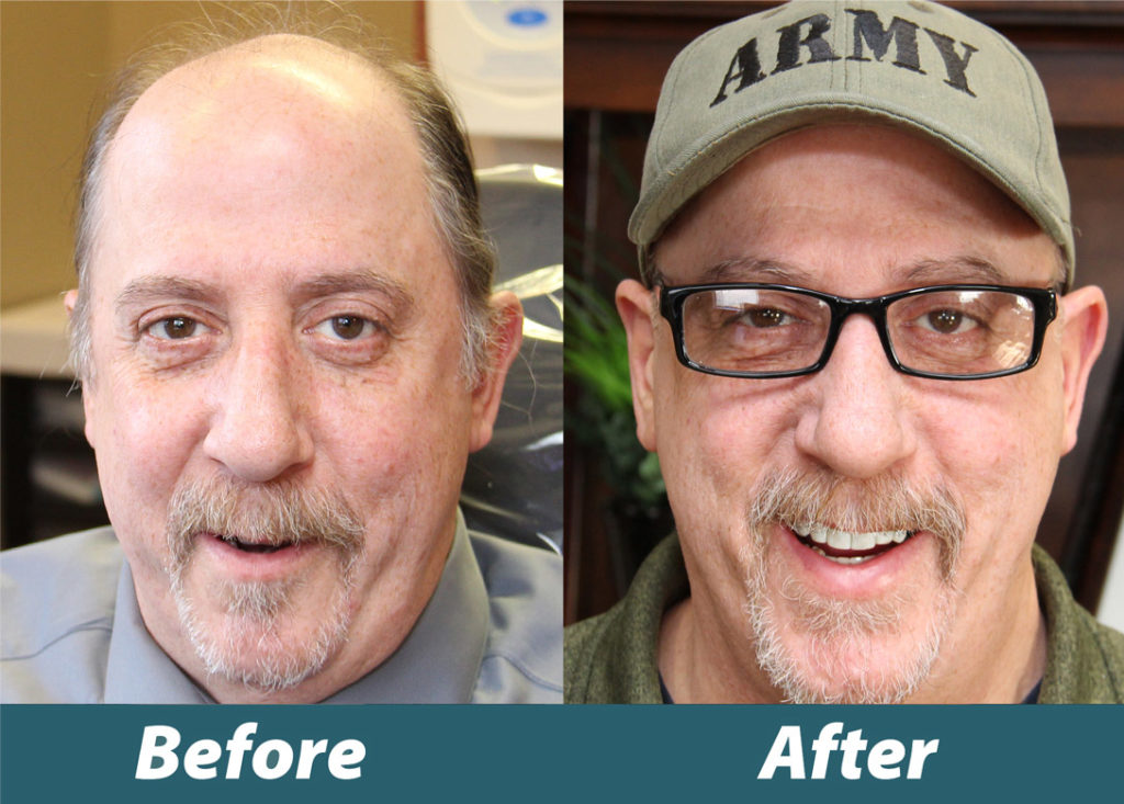 Before and after image of Veteran Joseph Elmer's new smile
