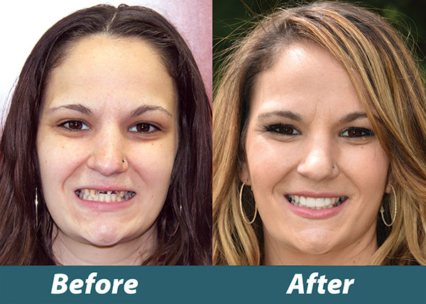 Before and after photos of Nicole a Mothers Day Makeover winner