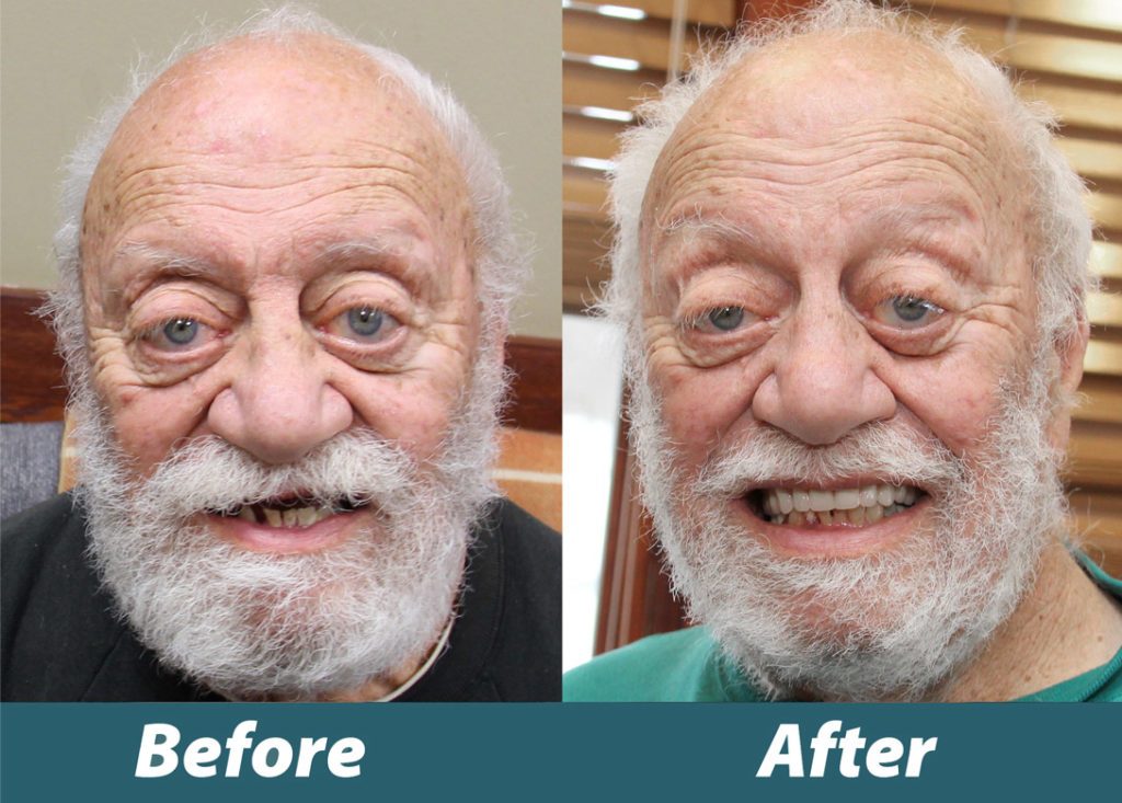 Before and after image of Veteran Paul Geiser's new smile