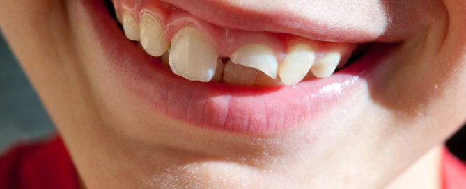 Child with a chipped tooth smiling