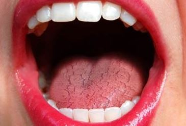 Image result for dry mouth
