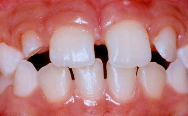 Microdontia teeth