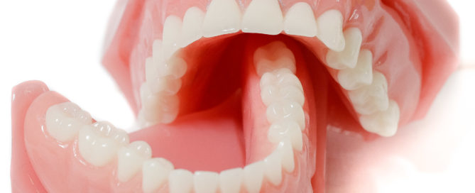 Removeable acrylic dentures