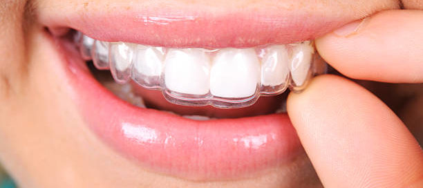 Invisalgin on teeth