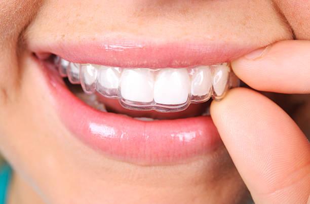 Invisalgin on teeth