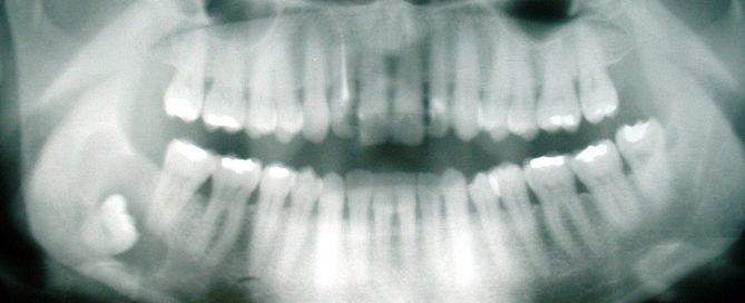 Impacted wisdom teeth xray