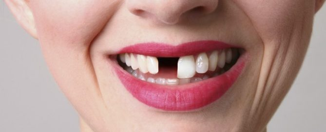 Woman smiling with her front tooth missing
