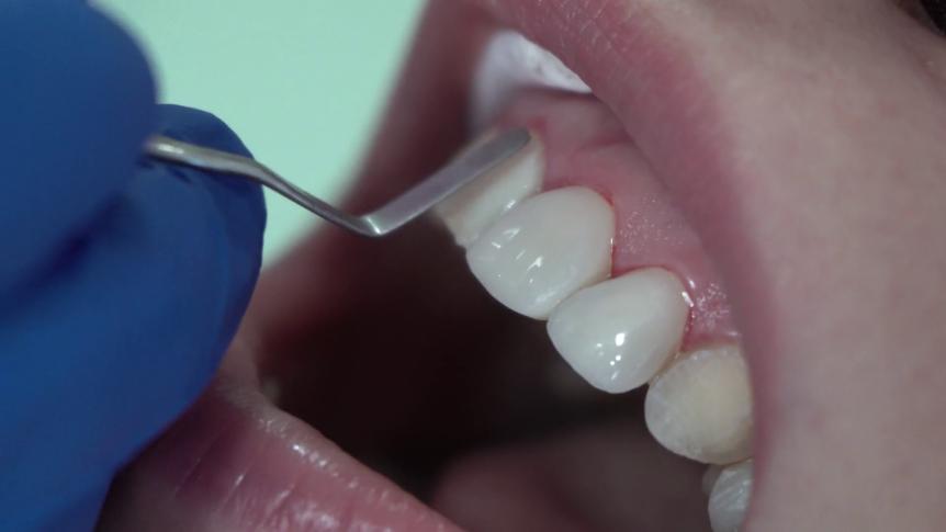 Dentist putting on veneers