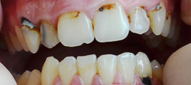 Early gum disease
