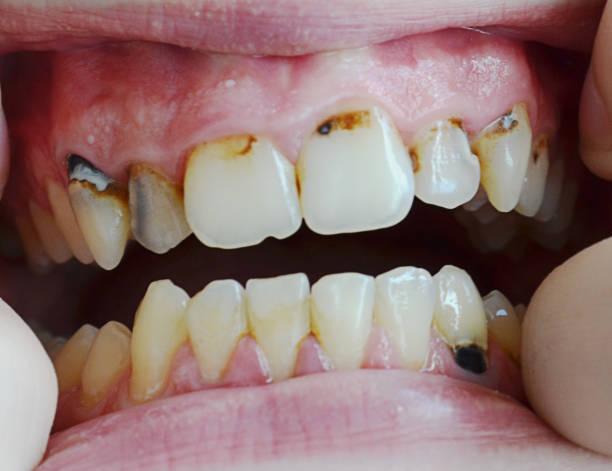 Warning Signs of Gum Disease - Westermeier Martin Dental Care