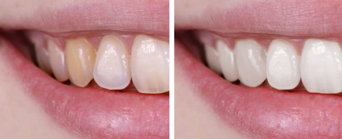 Before and after showing damaged yellow teeth to clean white teeth
