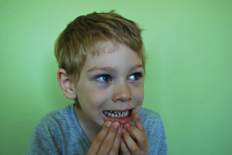 Young boy showing his baby teeth