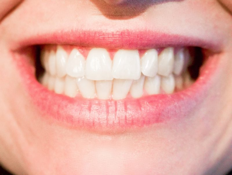 Close up of a womans smile