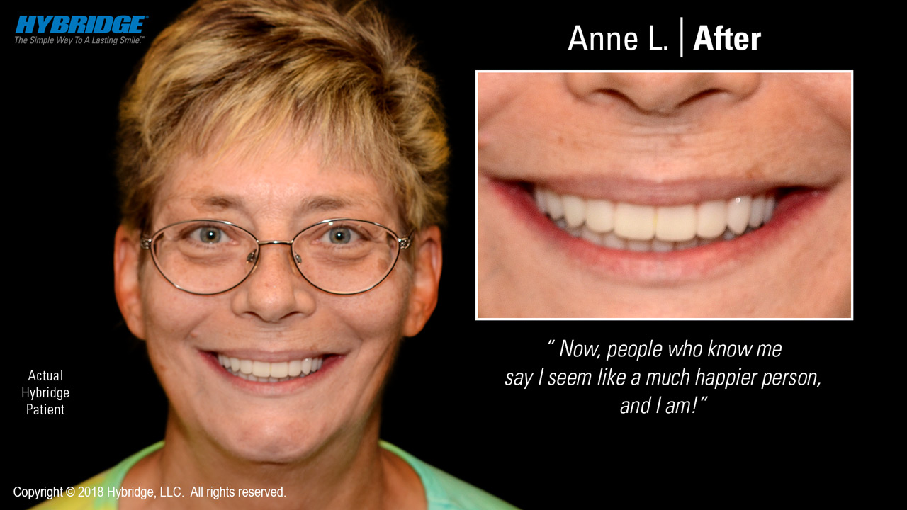 Anne after Hybridge