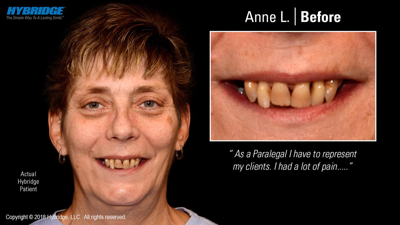 Anne before Hybridge