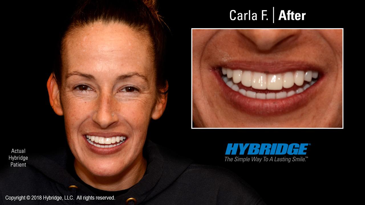 Carla after Hybridge