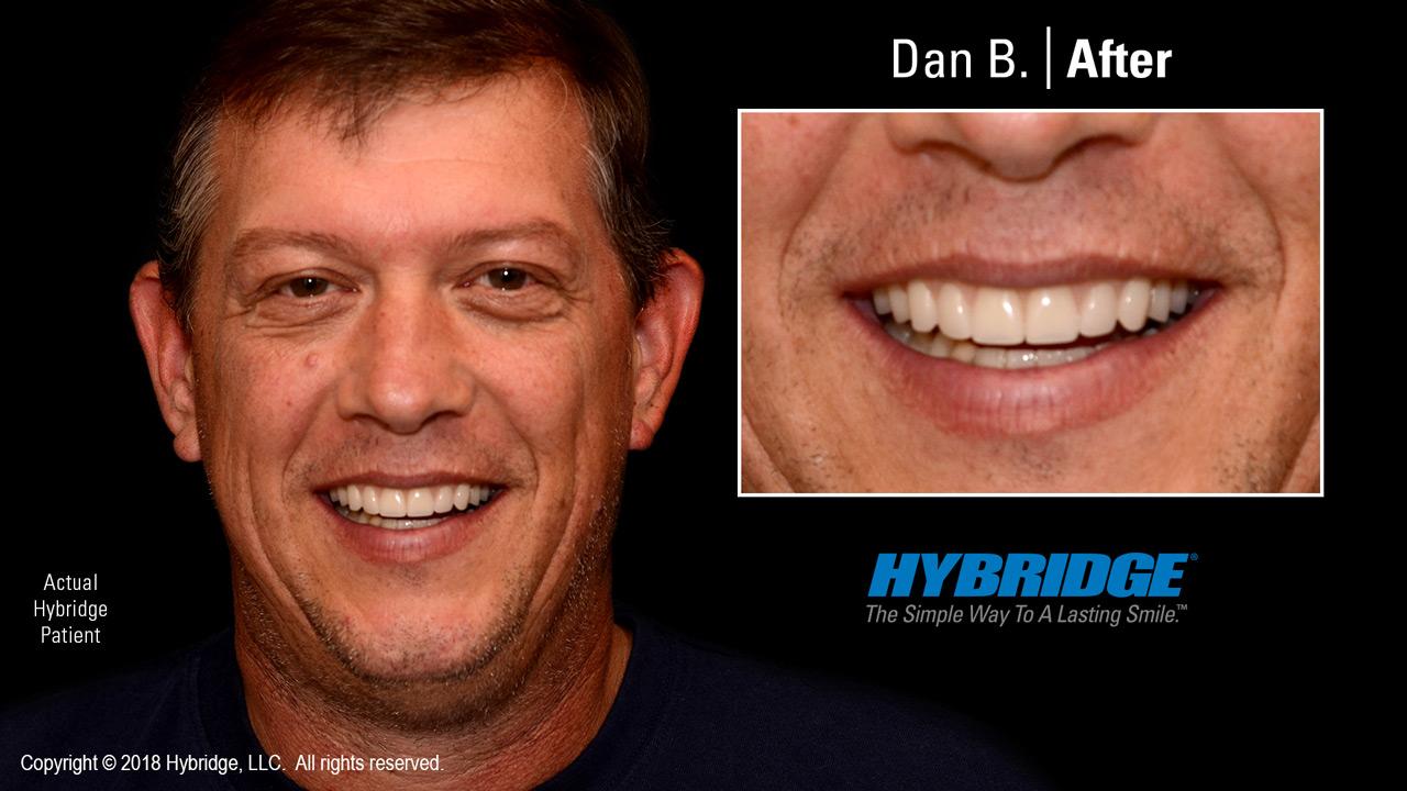 Dan after Hybridge