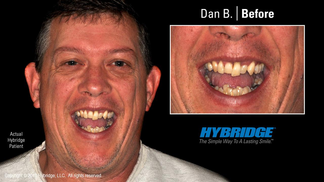 Dan before Hybridge