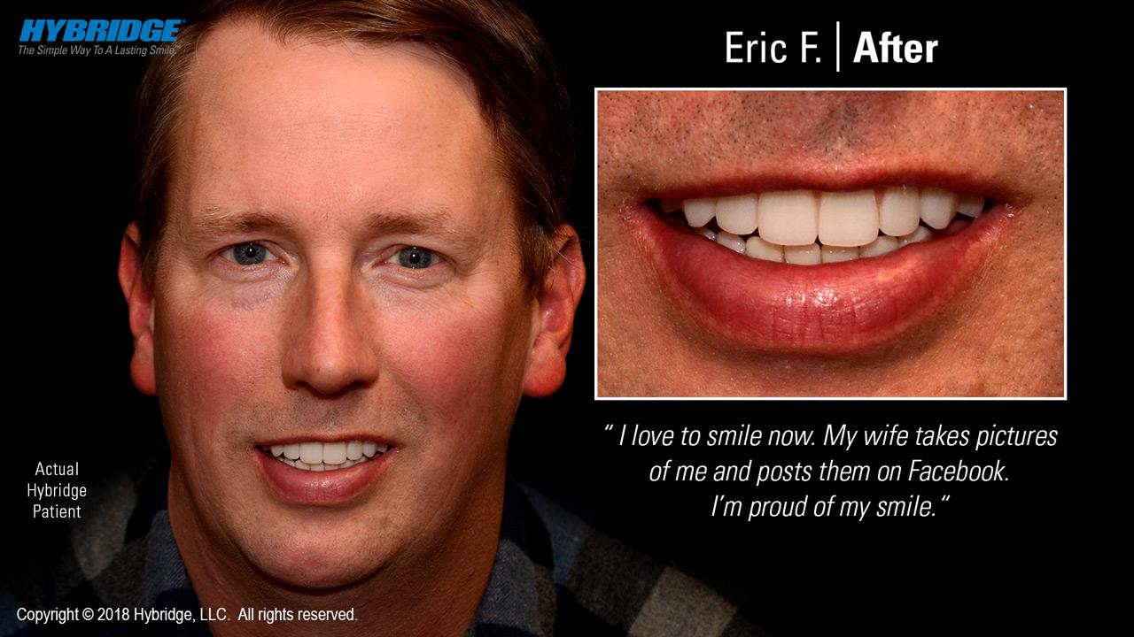 Eric after Hybridge