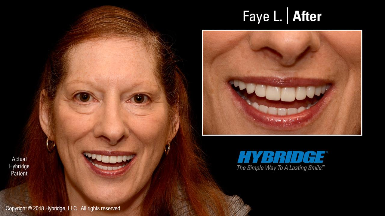 Faye after Hybridge