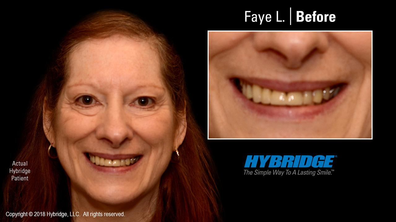 Faye before Hybridge