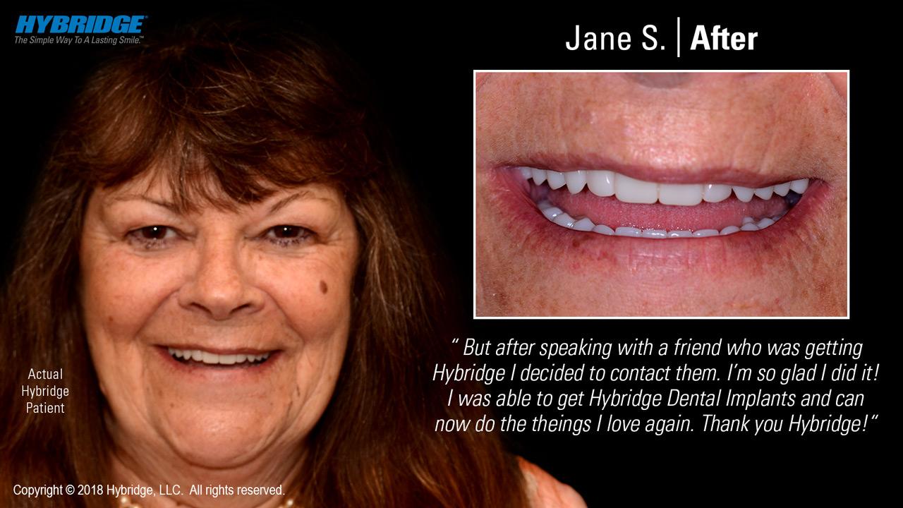 Jane after Hybridge