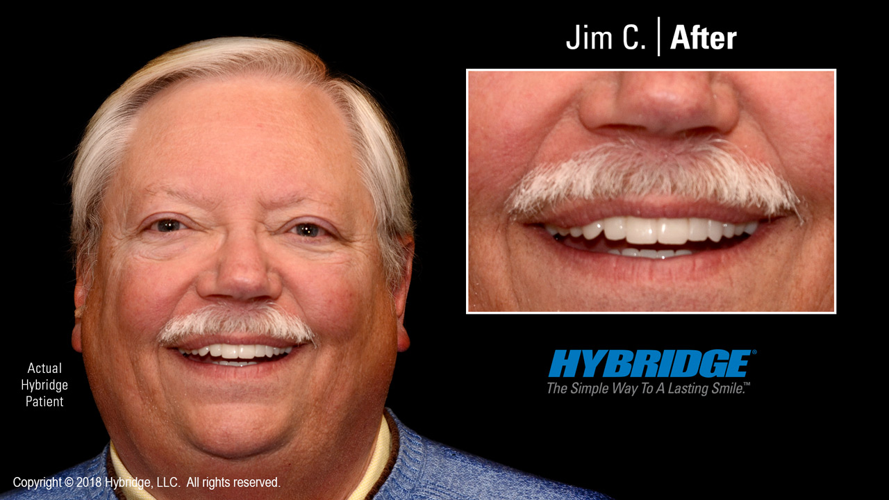 Jim after Hybridge