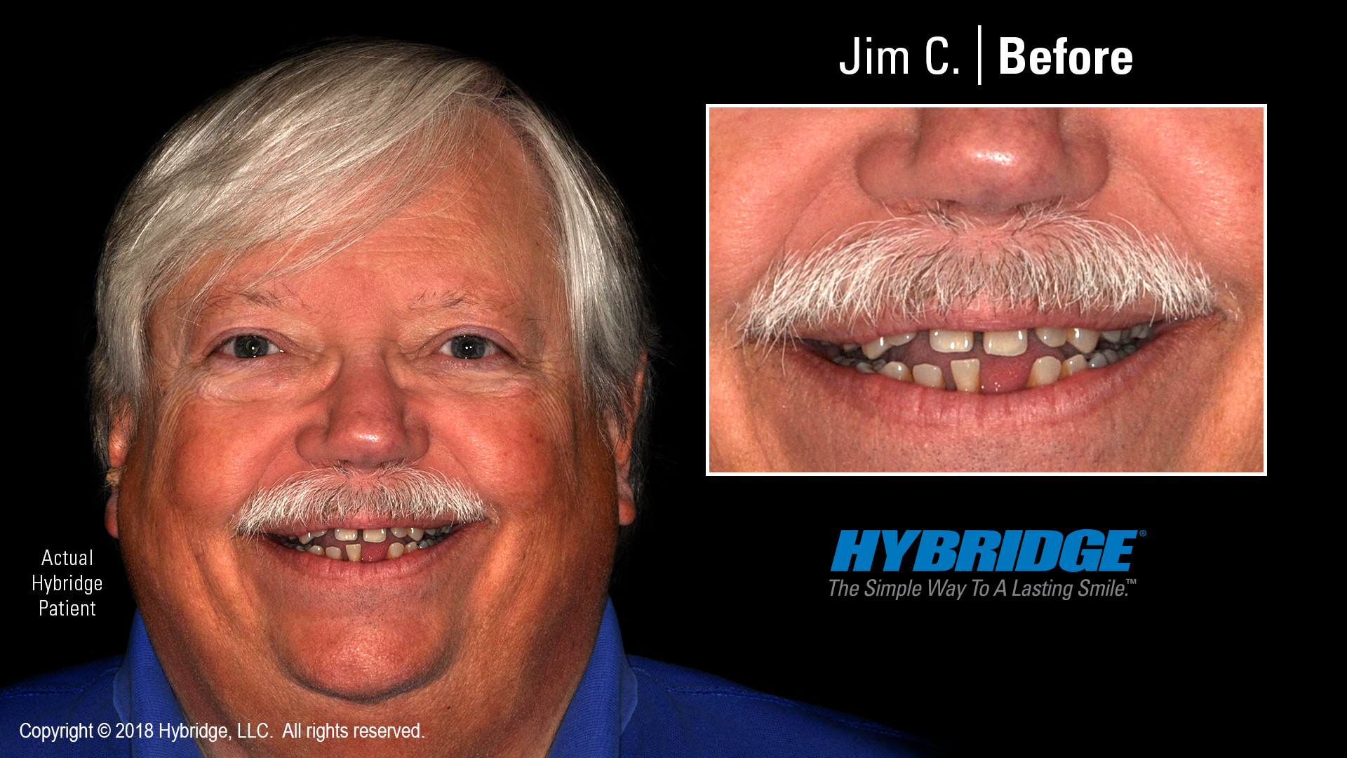 Jim before Hybridge