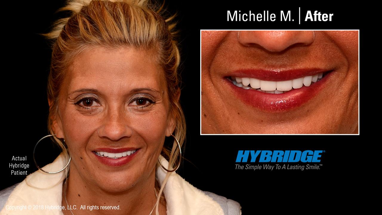 Michelle after Hybridge