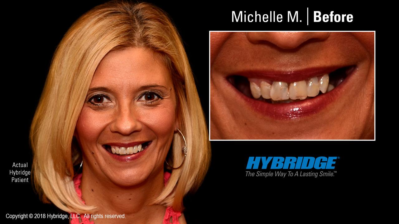 Michelle before Hybridge